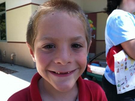 1st grader missing 2 front teeth D